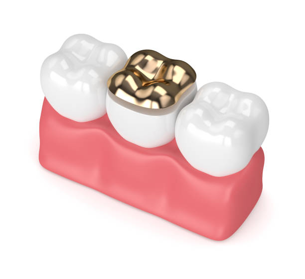 3d render of teeth with dental golden onlay filling 3d render of teeth with dental golden onlay filling in gums over white background inlay stock pictures, royalty-free photos & images