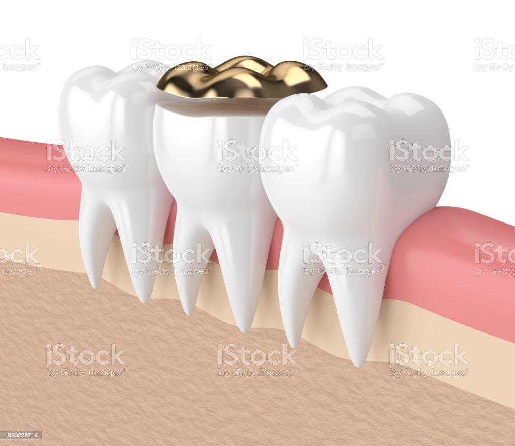 Fotografía de Render 3d De Dientes Con Relleno Dental Oro ...