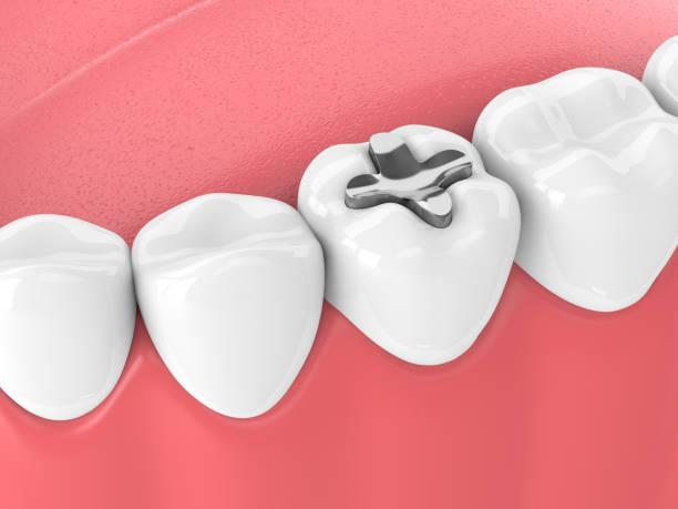 3d rendering der zähne mit dental inlay füllung - inlay zahn stock-fotos und bilder