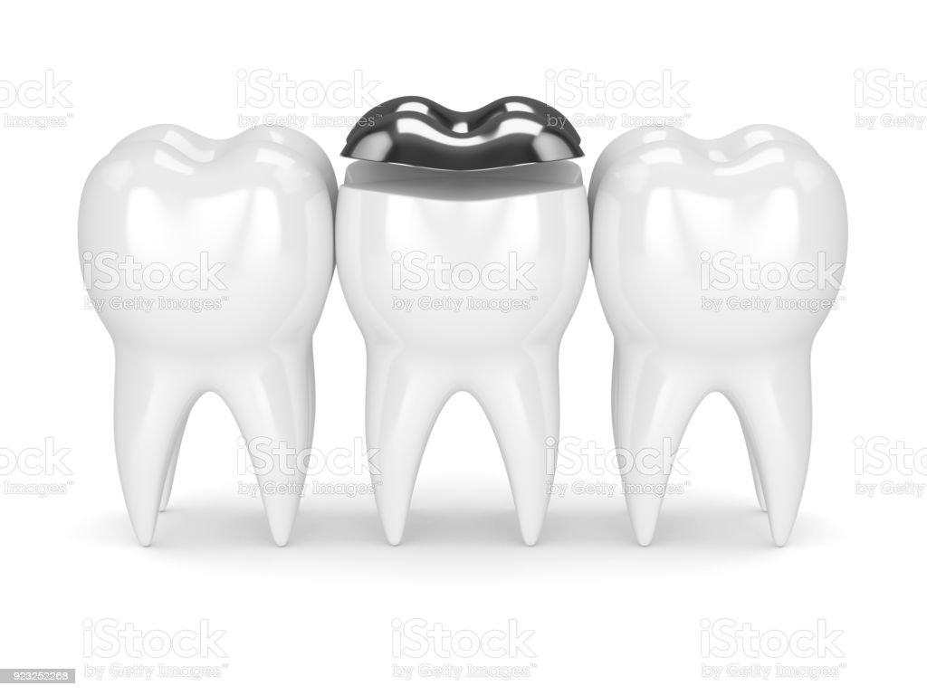 3d render of teeth with dental onlay amalgam filling stock photo