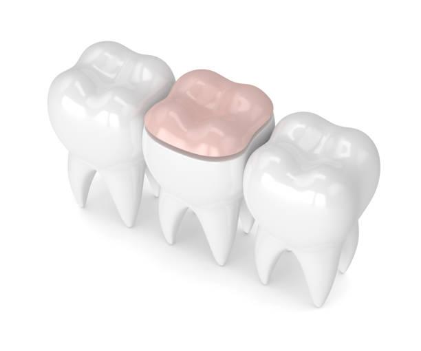 3d rendering der zähne mit dental onlay füllung - inlay zahn stock-fotos und bilder
