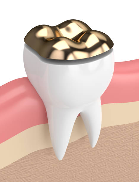 3d render of teeth with dental onlay filling 3d render of teeth with dental onlay filling in gums inlay stock pictures, royalty-free photos & images