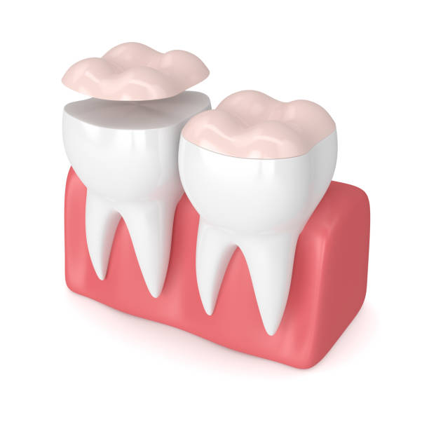 3d render of teeth with dental onlay 3d render of teeth with dental onlay over white background inlay stock pictures, royalty-free photos & images
