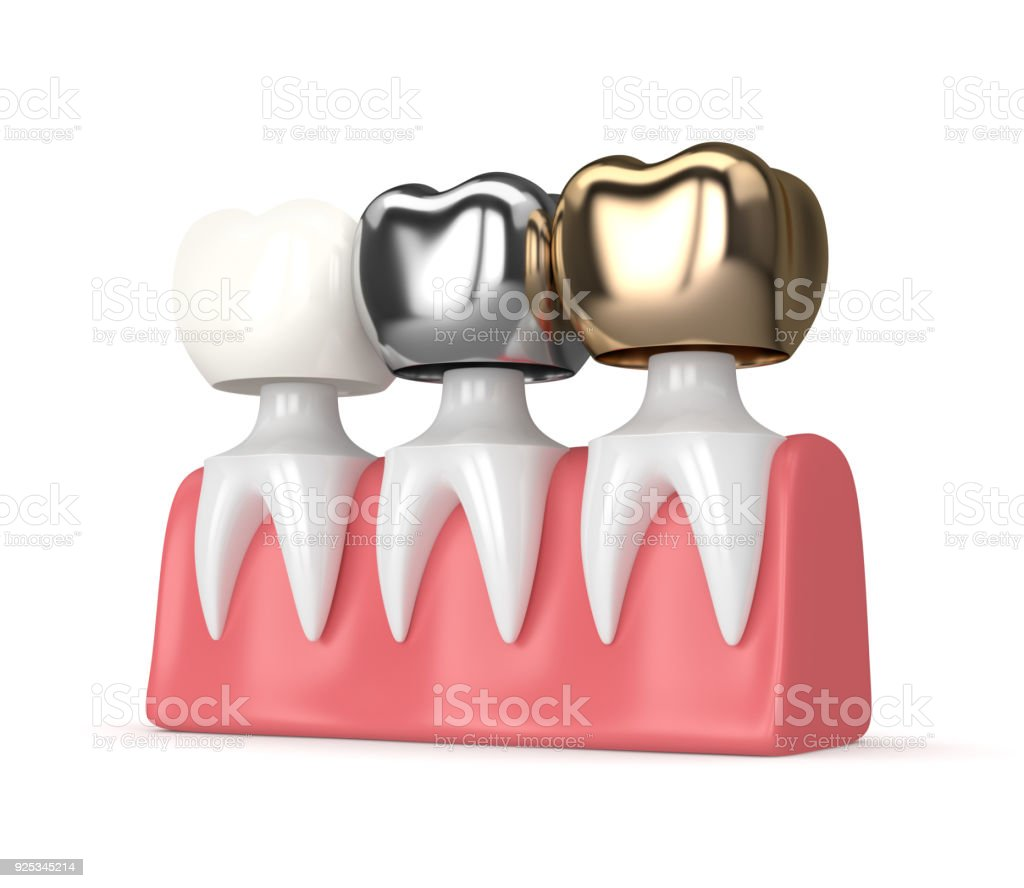 3d Render Of Teeth With Different Types Of Dental Crown Stock Photo