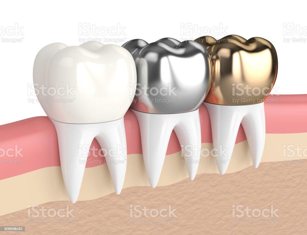 3d Rendering Der Zähne Mit Verschiedenen Arten Von Zahnkrone Stock ...