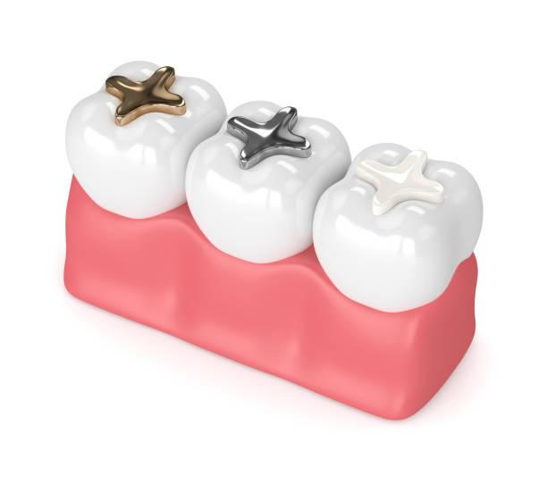 3d rendering der zähne mit verschiedenen arten von zahnfüllung - inlay zahn stock-fotos und bilder
