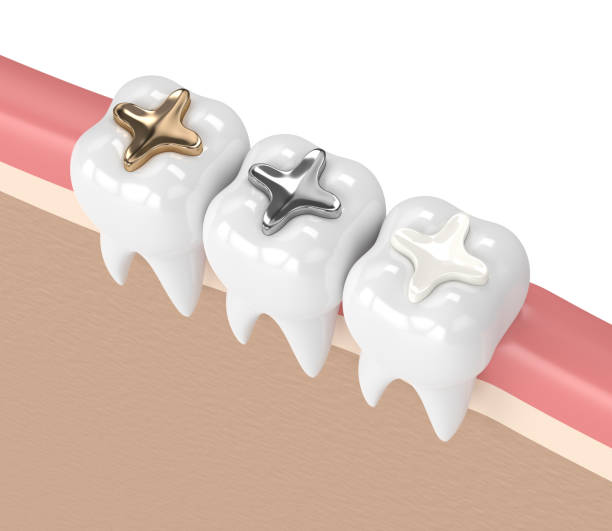 3d render of teeth with different types of dental filling stock photo