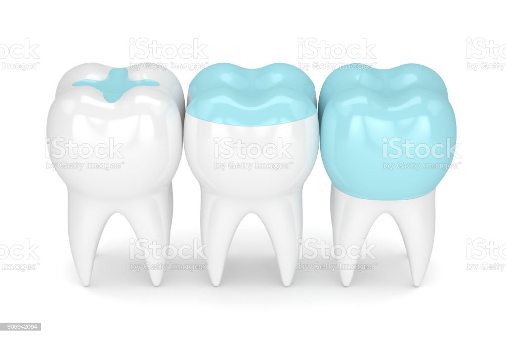 3d render of teeth with different types of filling stock photo