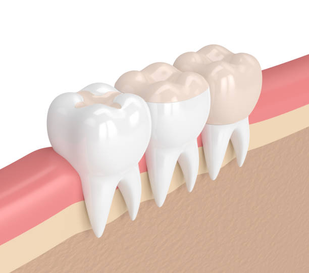 3d rendering der zähne mit verschiedener füllung - inlay zahn stock-fotos und bilder
