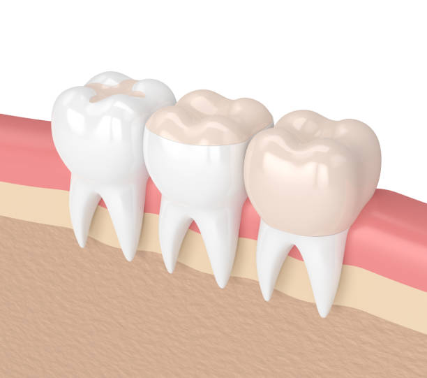 3d render of teeth with different types of filling 3d render of teeth with inlay, onlay and crown filling in gums inlay stock pictures, royalty-free photos & images