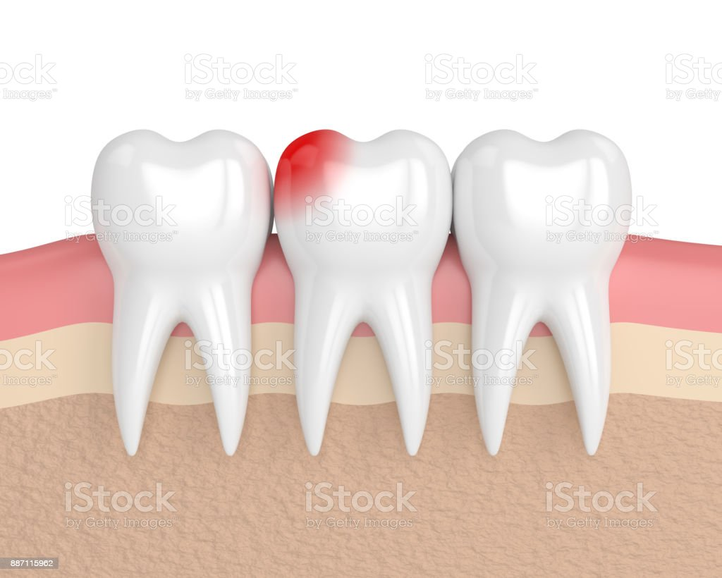 3d Render Of Teeth With Toothache In Gums Stock Photo & More ...