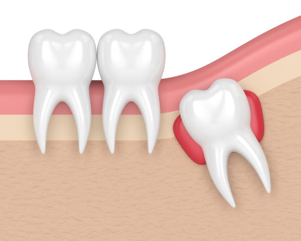 3d render of teeth with wisdom cyst - cyst stock pictures, royalty-free photos & images