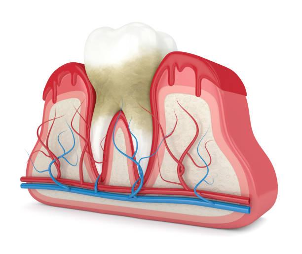 3d renderen van tand in bloedend tandvlees - tandvleesontsteking stockfoto's en -beelden