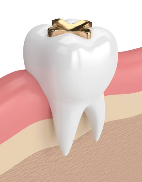 3d render of tooth with dental golden inlay filling 3d render of tooth with dental golden inlay filling in gums inlay stock pictures, royalty-free photos & images
