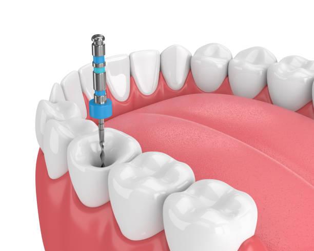 3d render van tand met endodontische bestand in kaak - dentine stockfoto's en -beelden