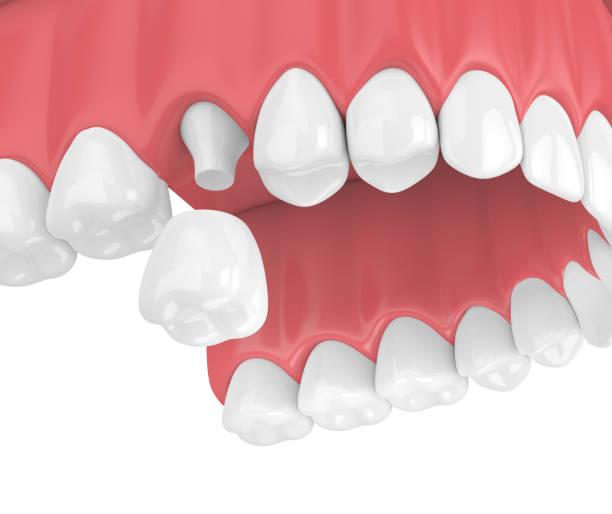 3d render des oberkiefers mit zahnkrone restaurierung - inlay zahn stock-fotos und bilder
