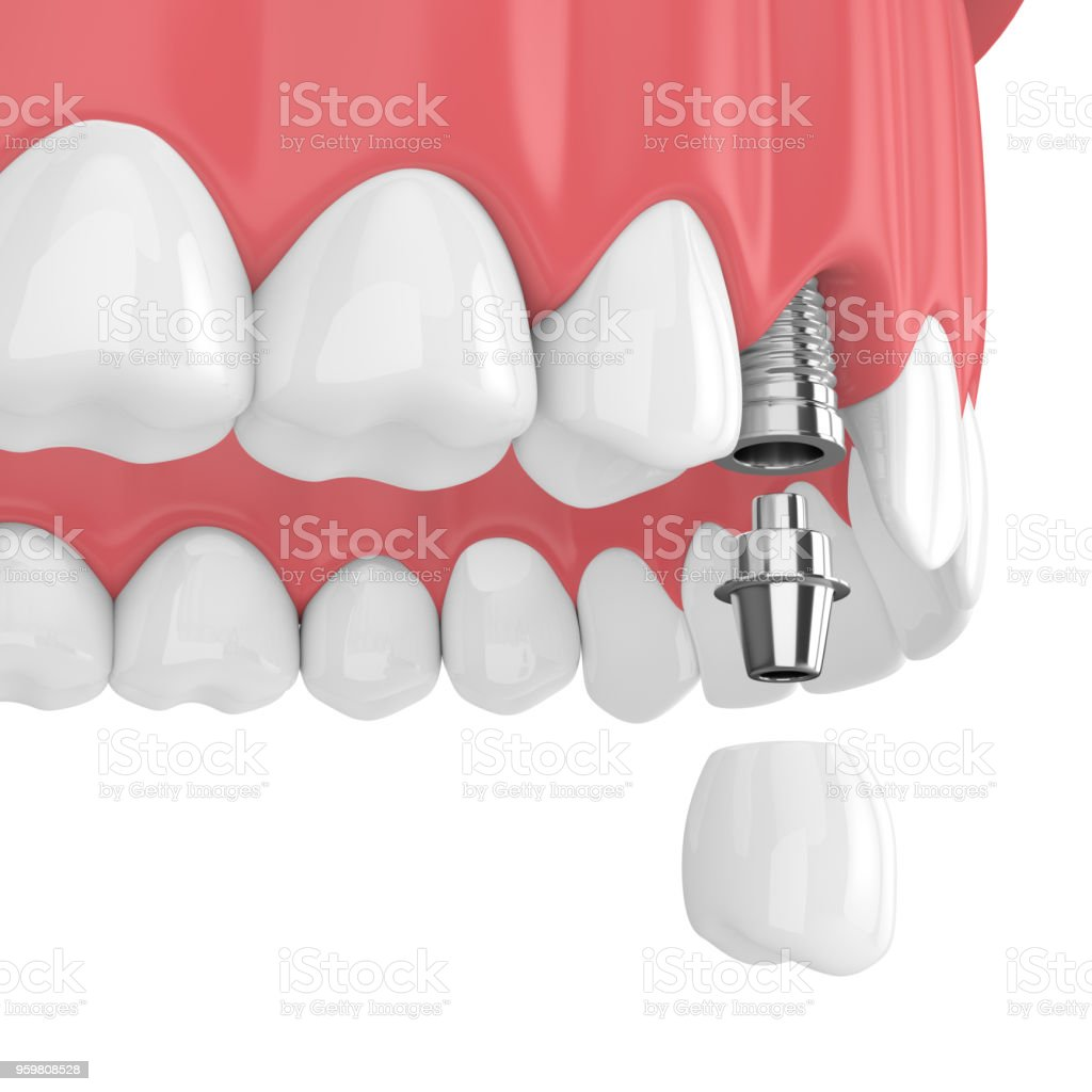 3d Render Of Upper Jaw With Dental Premolar Implant Stock Photo