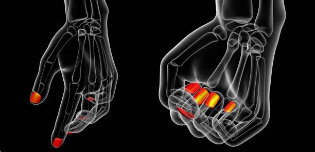 3D Rendering-Darstellung der Nagel Anatomie – Foto