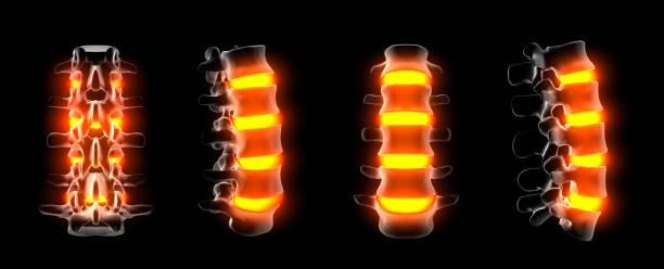 3D Darstellung der Struktur der Wirbelsäule auf schwarzem Hintergrund – Foto