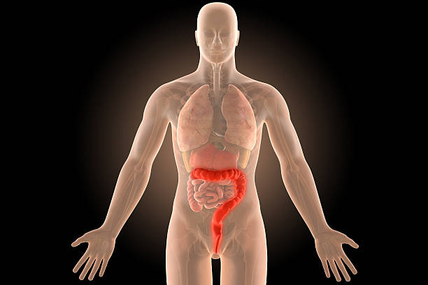 3d ulcerative extensive colitis infection with clipping path. stock photo
