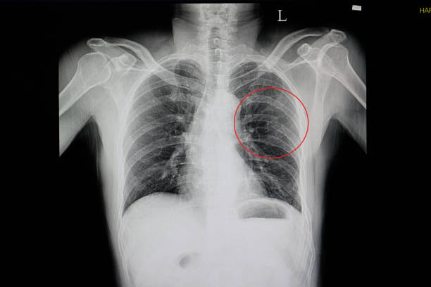 eine röntgenaufnahme von einem stumpfen brustwand injuried - herz lungen training stock-fotos und bilder