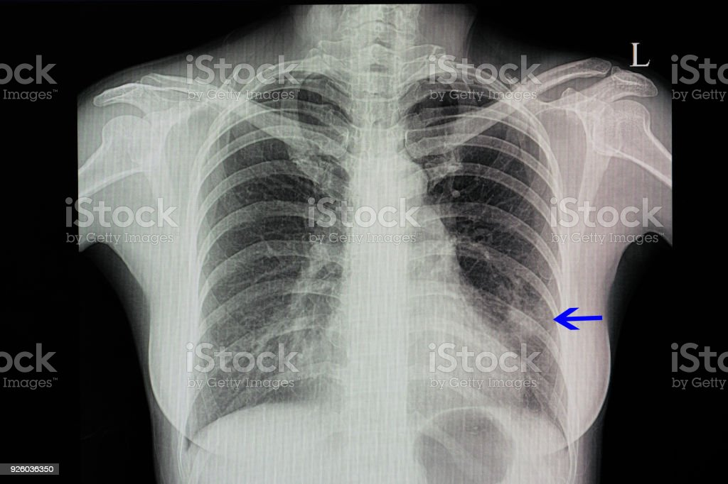 A Chest Xray Of A Patient With Pneumonia Stock Photo & More Pictures ...