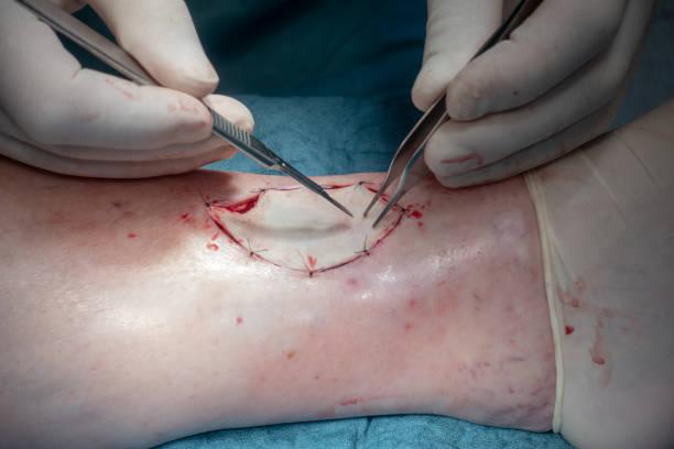 Ein Arzt führt einen chirurgischen Eingriff durch – Foto
