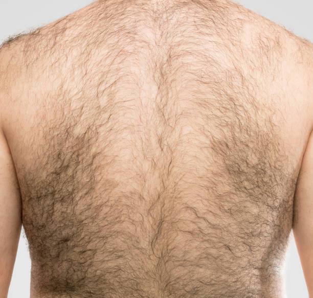 a hairy back stock photo