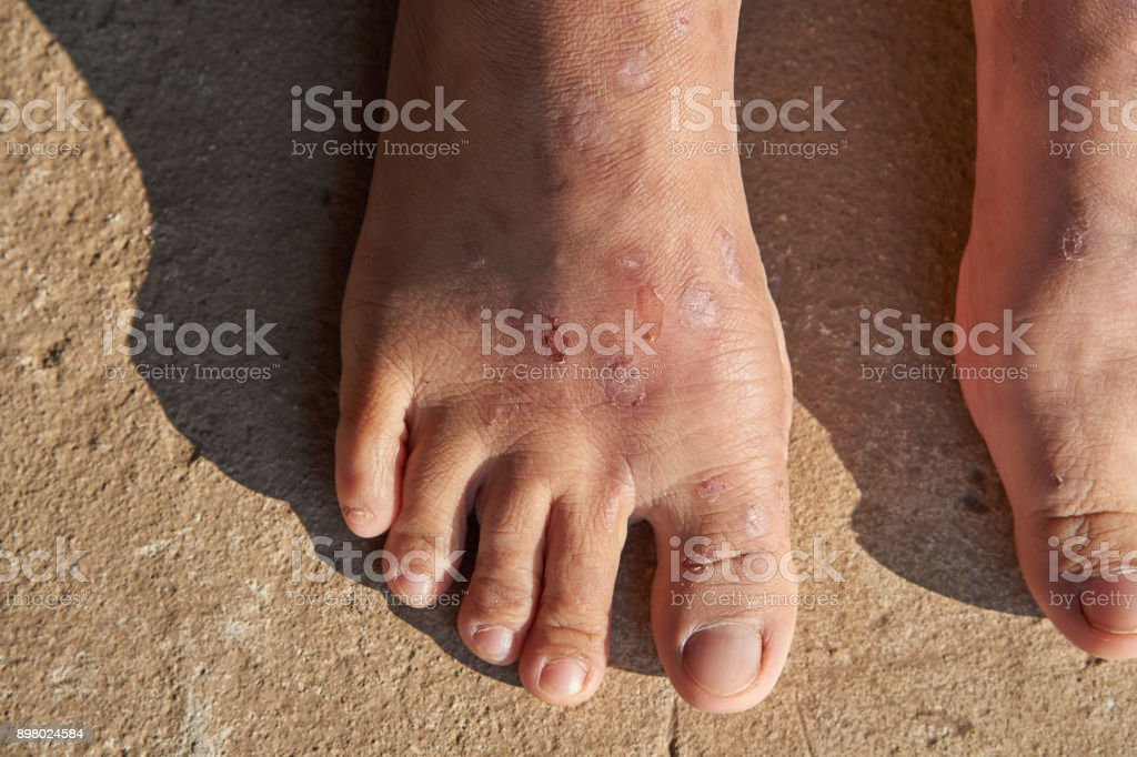 a lot of scars on woman feet. stock photo