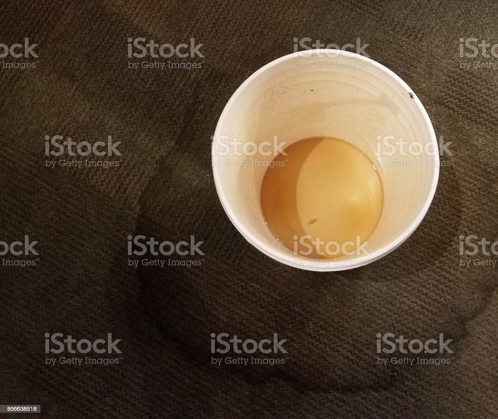 a plastic water bucket catching dripping water and a stained carpet stock photo