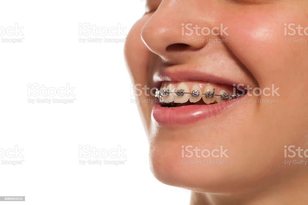 una joven sonriente con una prótesis dental - foto de stock
