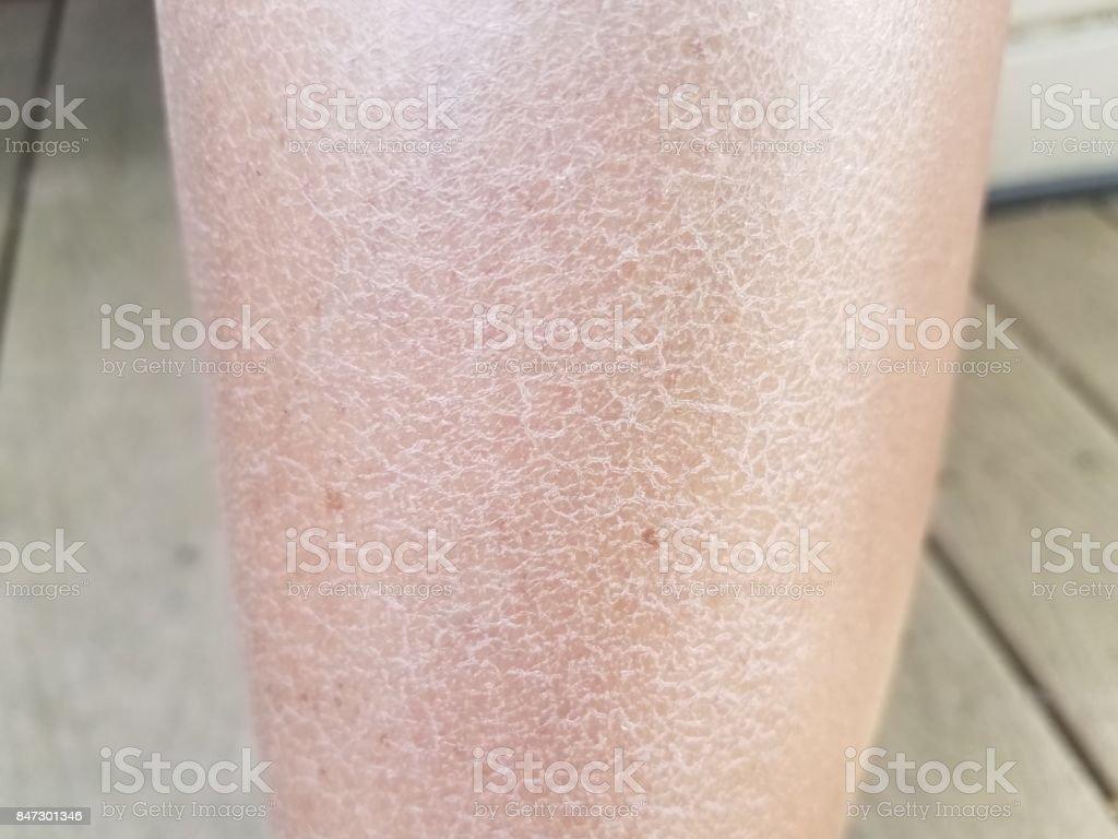Trockene Schuppige Juckende Beine Einer Frau Stockfoto Und Mehr