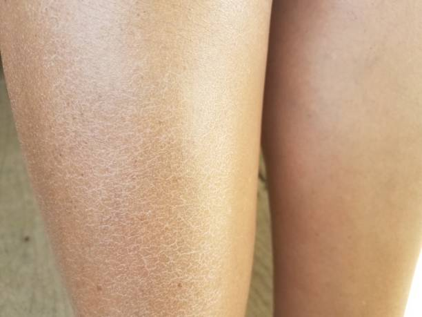a woman's dry flaky itchy legs stock photo