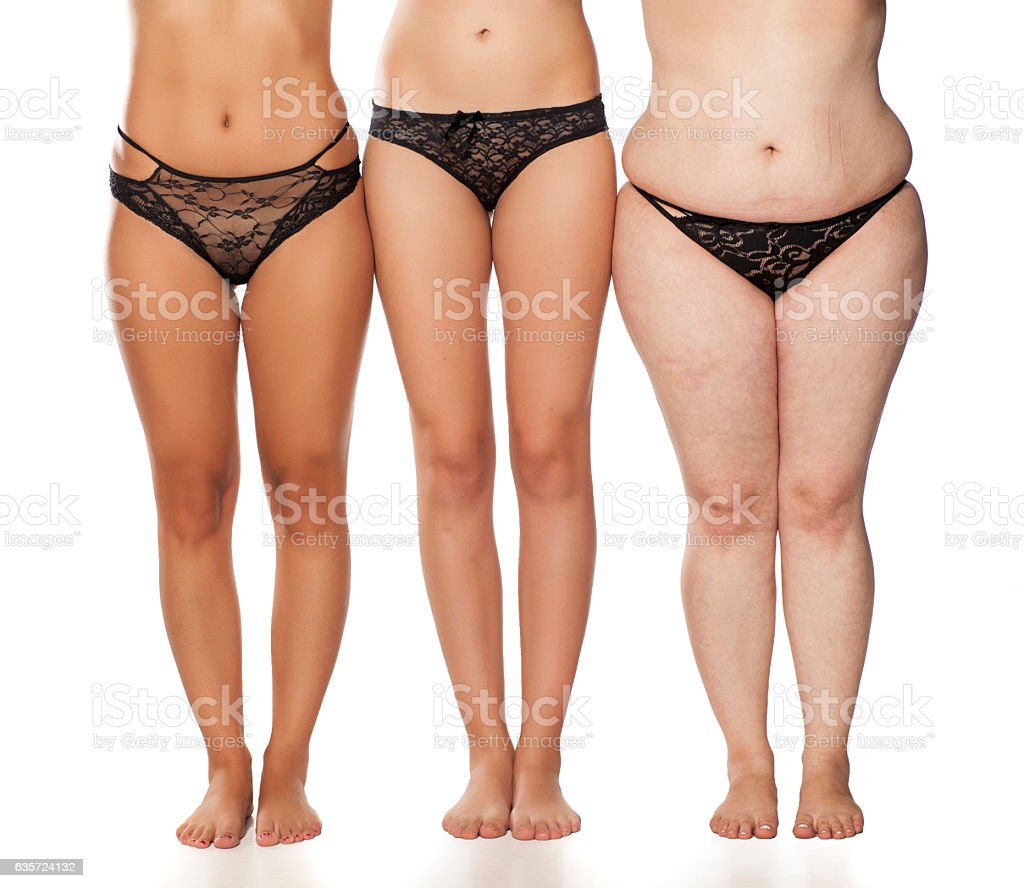 a woman's legs, three women with different weights. stock photo