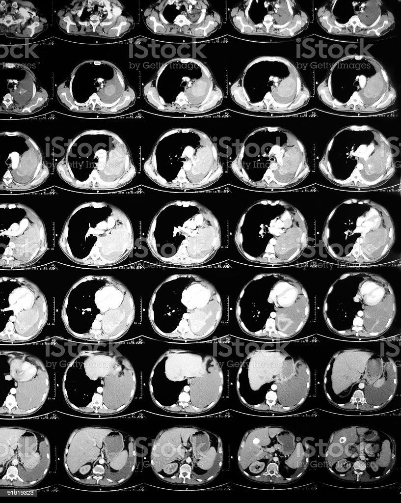 abdomen tomografía computarizada - foto de stock