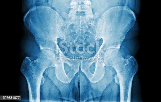 istock Abdomen X-Ray 527631077