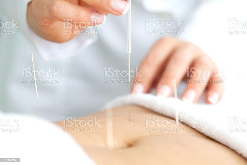Abdominal acupuncture stock photo
