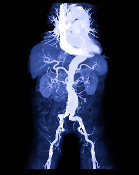 CTA abdominale Aorta oder CT Angiographie 3D-mip-Bild, das abdominale Aortic Aeurysm medizinischen Rufnamen AAA – Foto