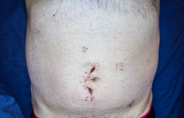 Abdominal Emergency Cancer Surgery Incision Scar Close-Up Selfie stock photo