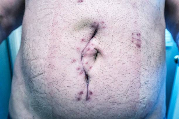 Abdominal Emergency Ileal Cancer Tumor Extraction Surgery Incision Scar Close-Up stock photo