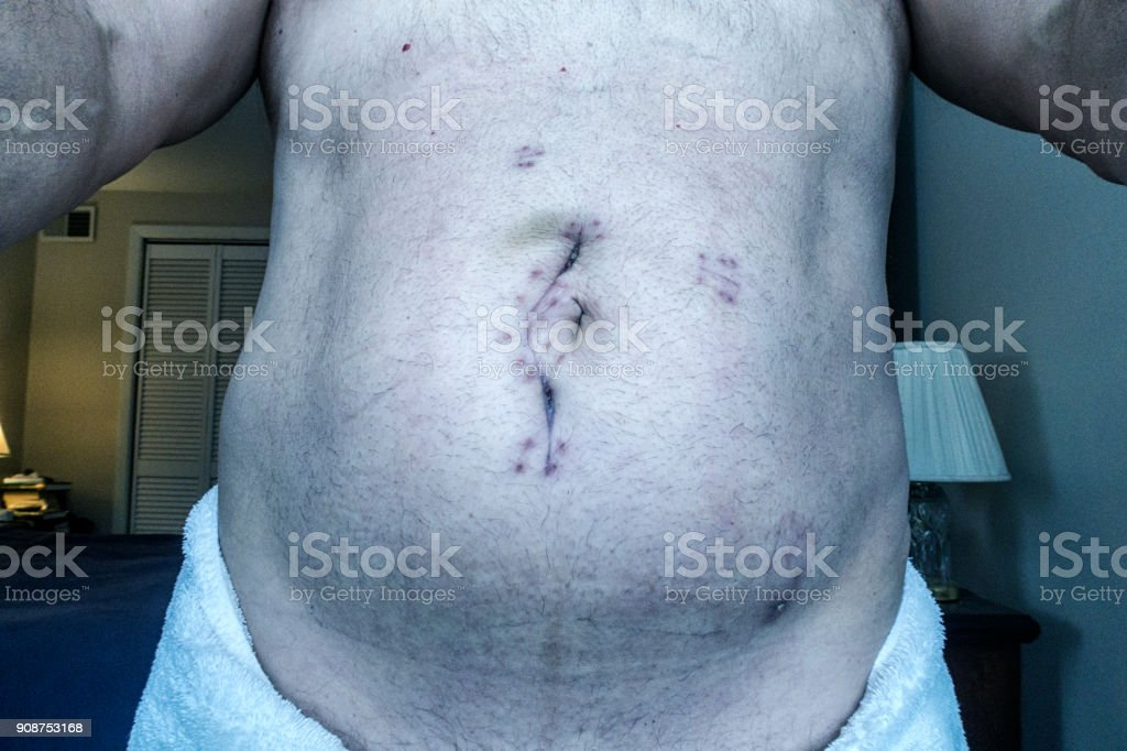 Abdominal Emergency Ileal Cancer Tumor Extraction Surgery Incision Scar stock photo