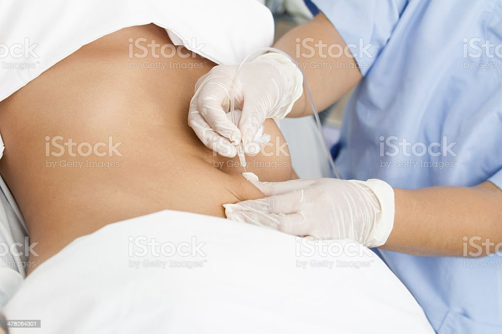 Abdominal procedure stock photo