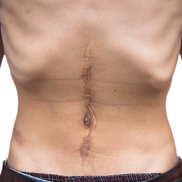 Abdominal scar from the surgery. stock photo