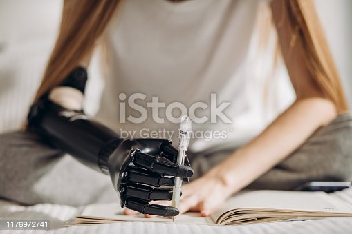 istock ability of controlling artificial arm. 1176972741