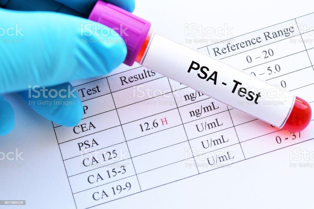 psa próstata y un valor normal 1 263 5