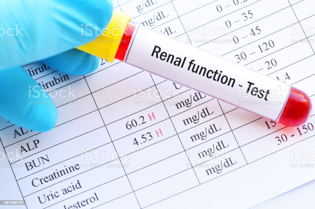 Abnormal high renal function test results stock photo