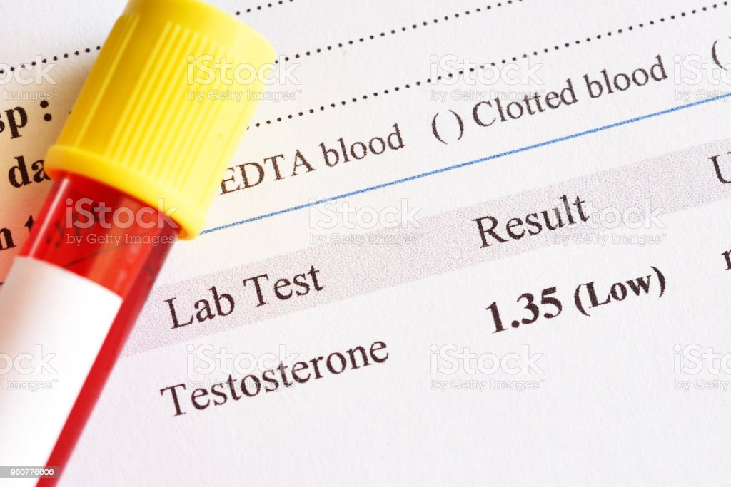 Abnormal Low Testosterone Hormone Test Result Stock Photo - Download