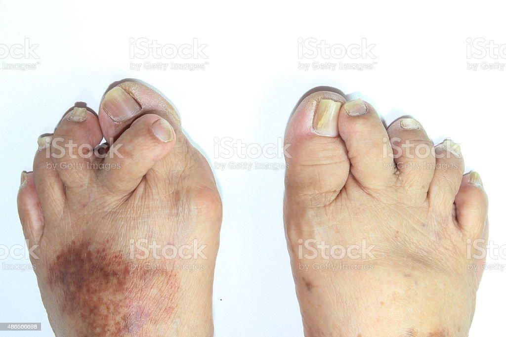 Abnormal second toe. stock photo