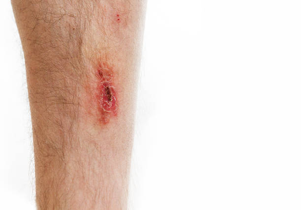 abrasion on foot, scar, on white background - open wounds stock photos and pictures