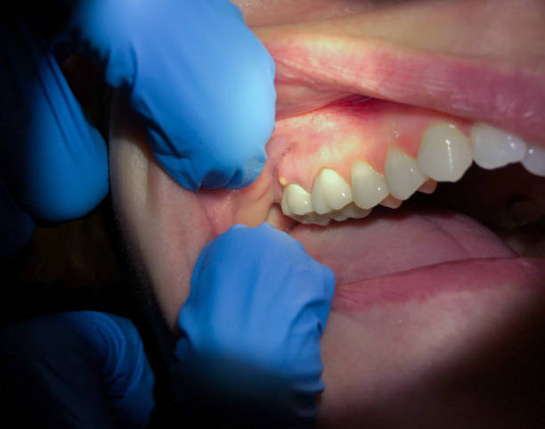 Abscessed Tooth stock photo